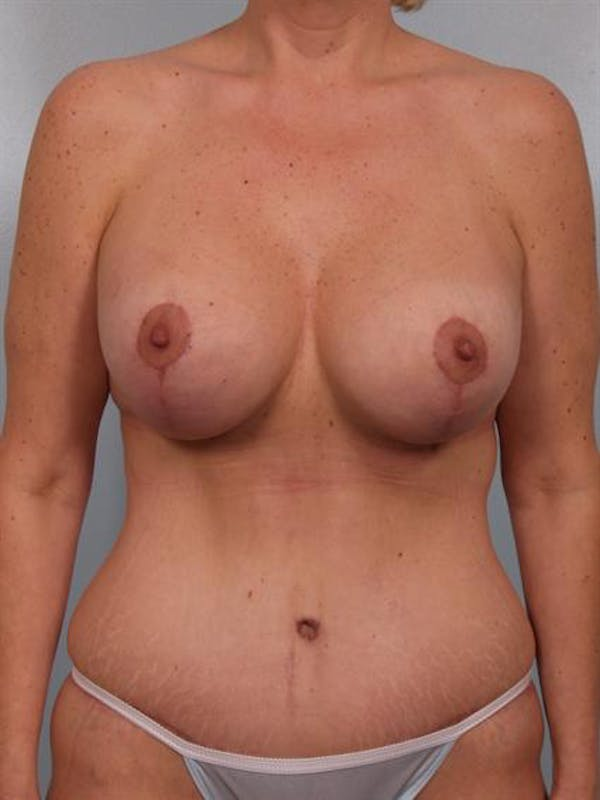 Mommy Makeover Gallery - Patient 1310732 - Image 2