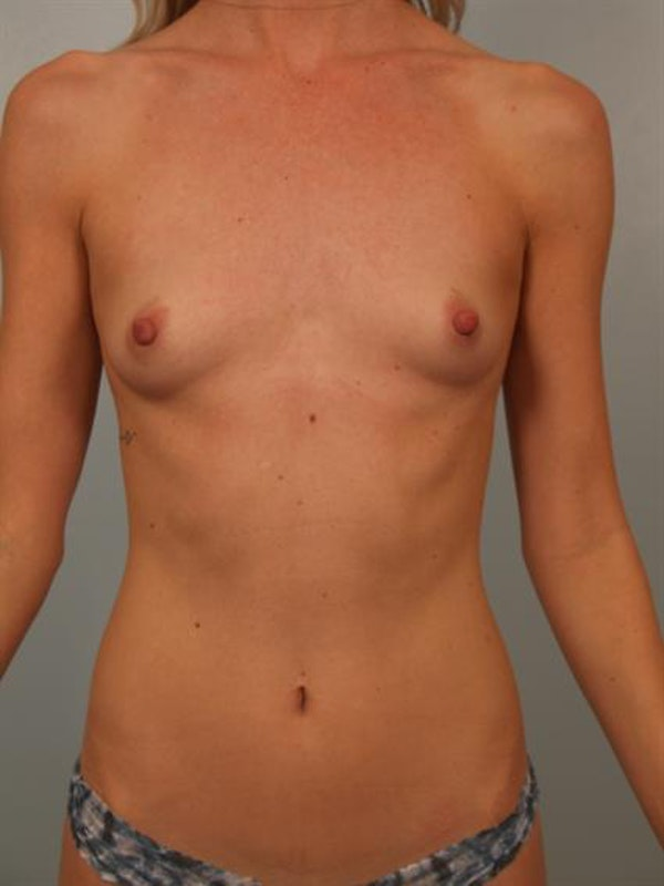 Breast Augmentation Gallery - Patient 1310733 - Image 1