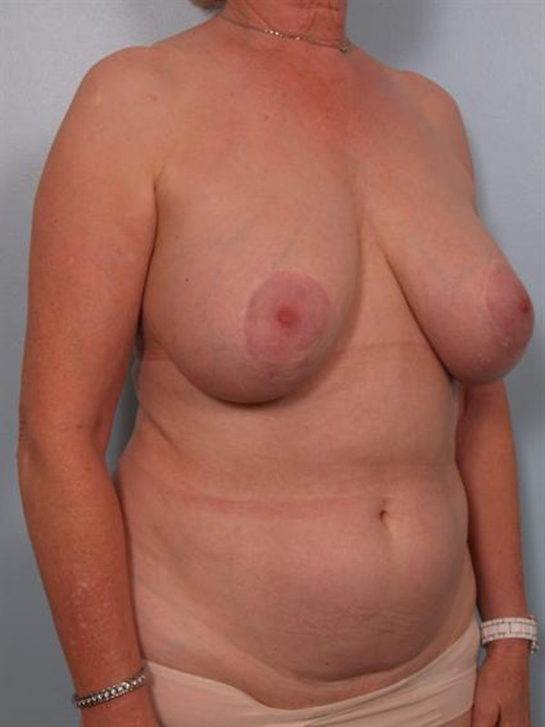 Complex Breast Revision Gallery - Patient 1310729 - Image 5