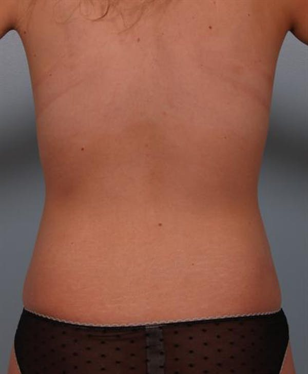 Power Assisted Liposuction Gallery - Patient 1310728 - Image 10