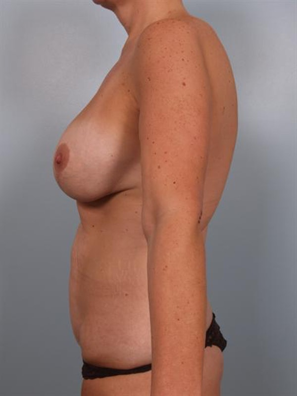 Mommy Makeover Gallery - Patient 1310732 - Image 3