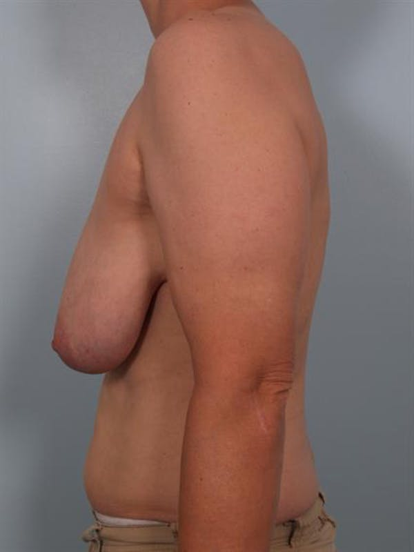 Breast Reduction Gallery - Patient 1310731 - Image 3