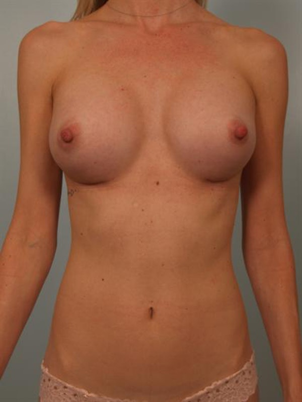 Breast Augmentation Gallery - Patient 1310733 - Image 2