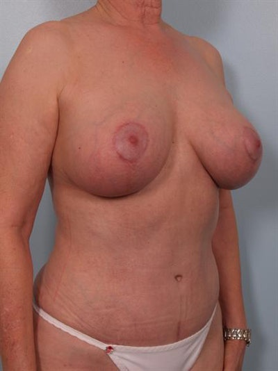 Complex Breast Revision Gallery - Patient 1310729 - Image 6
