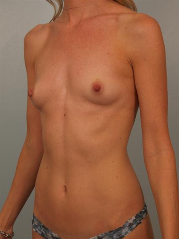 Breast Augmentation Gallery - Patient 1310733 - Image 3