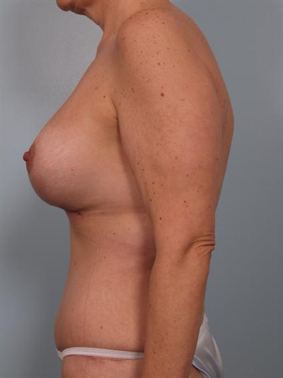 Mommy Makeover Gallery - Patient 1310732 - Image 4