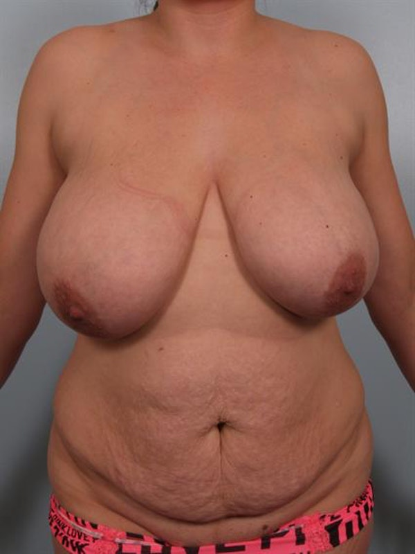 Power Assisted Liposuction Gallery - Patient 1310734 - Image 1