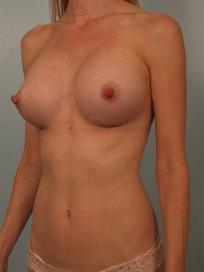 Breast Augmentation Gallery - Patient 1310733 - Image 4
