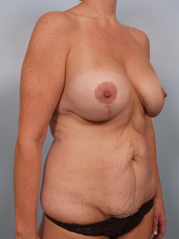 Mommy Makeover Gallery - Patient 1310732 - Image 5