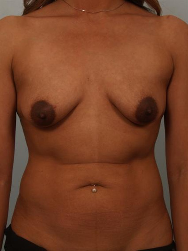 Breast Lift Gallery - Patient 1310736 - Image 1