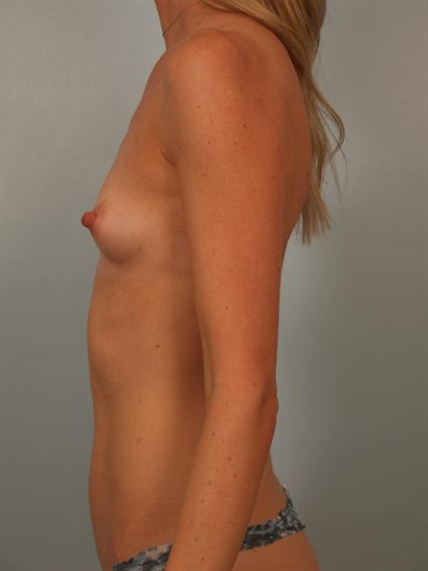 Breast Augmentation Gallery - Patient 1310733 - Image 5