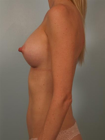 Breast Augmentation Gallery - Patient 1310733 - Image 6