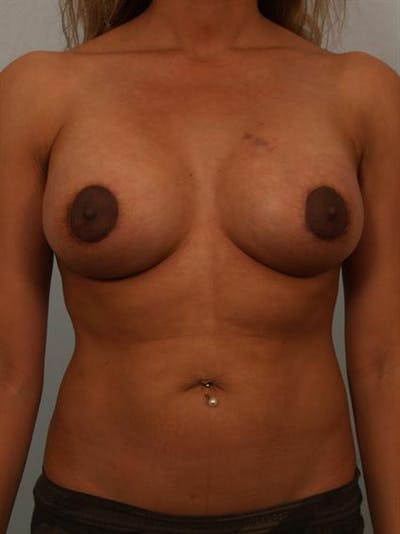 Breast Lift Gallery - Patient 1310736 - Image 2