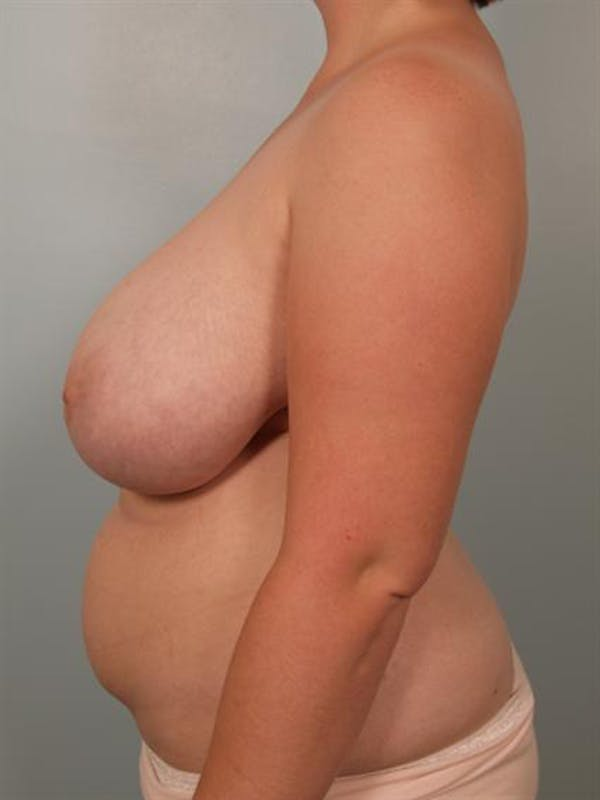 Breast Reduction Gallery - Patient 1310737 - Image 3