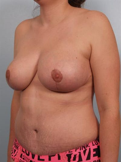 Power Assisted Liposuction Gallery - Patient 1310734 - Image 4