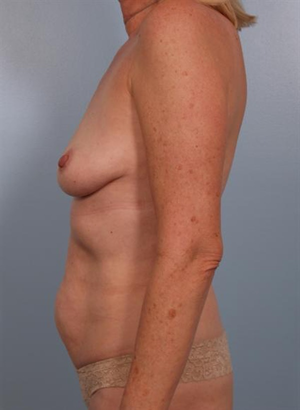 Mommy Makeover Gallery - Patient 1310738 - Image 3