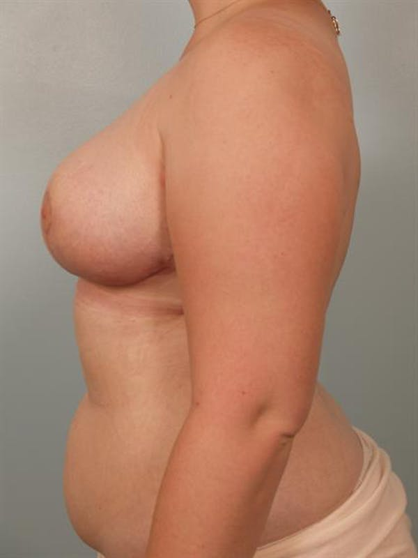 Breast Reduction Gallery - Patient 1310737 - Image 4