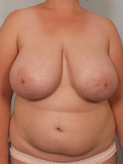 Breast Reduction Gallery - Patient 1310737 - Image 1