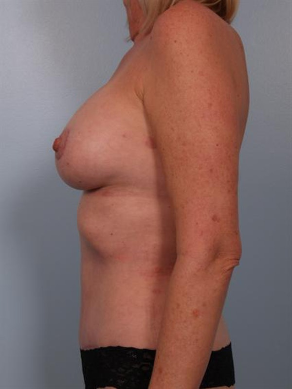 Mommy Makeover Gallery - Patient 1310738 - Image 4