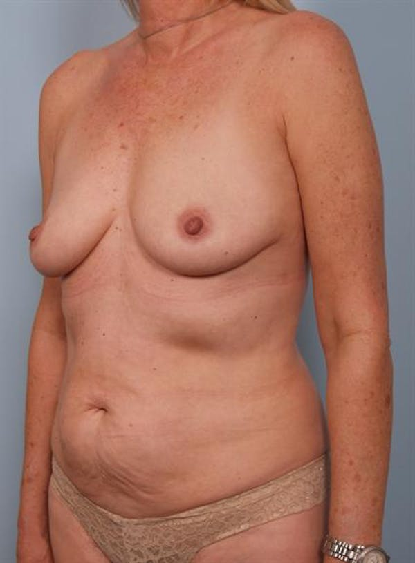 Mommy Makeover Gallery - Patient 1310738 - Image 5
