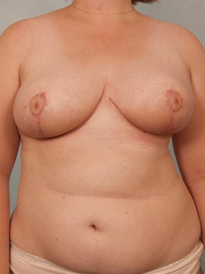 Breast Reduction Gallery - Patient 1310737 - Image 2