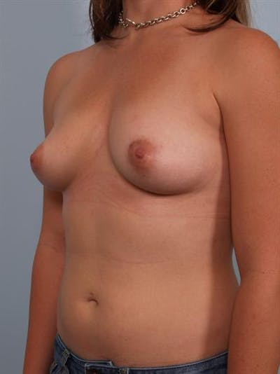 Breast Augmentation Gallery - Patient 1310741 - Image 1
