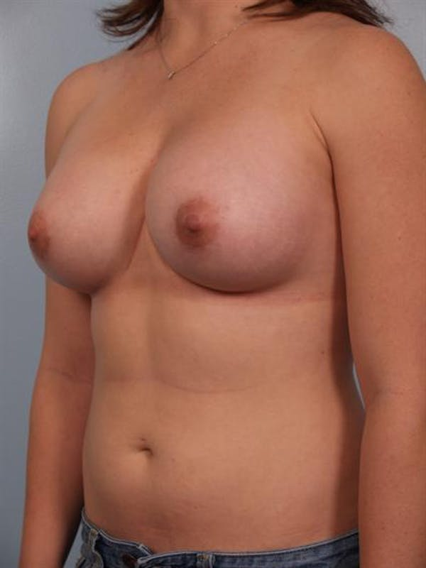 Breast Augmentation Gallery - Patient 1310741 - Image 2