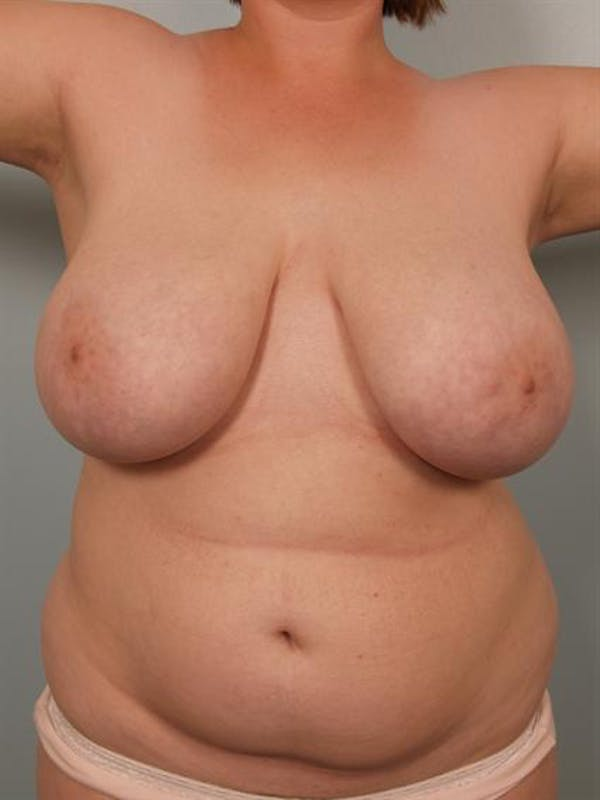 Breast Reduction Gallery - Patient 1310737 - Image 5