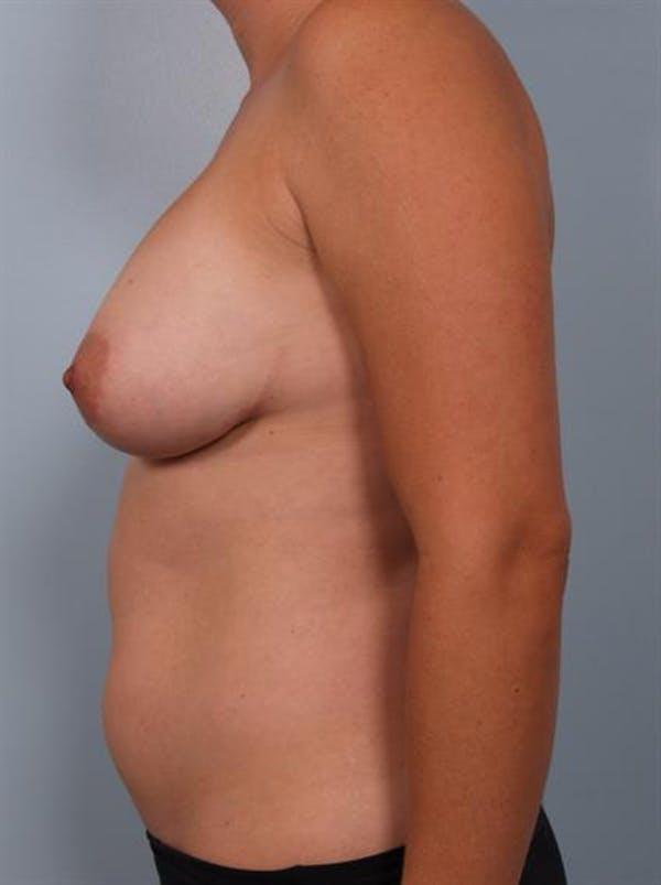 Complex Breast Revision Gallery - Patient 1310739 - Image 3