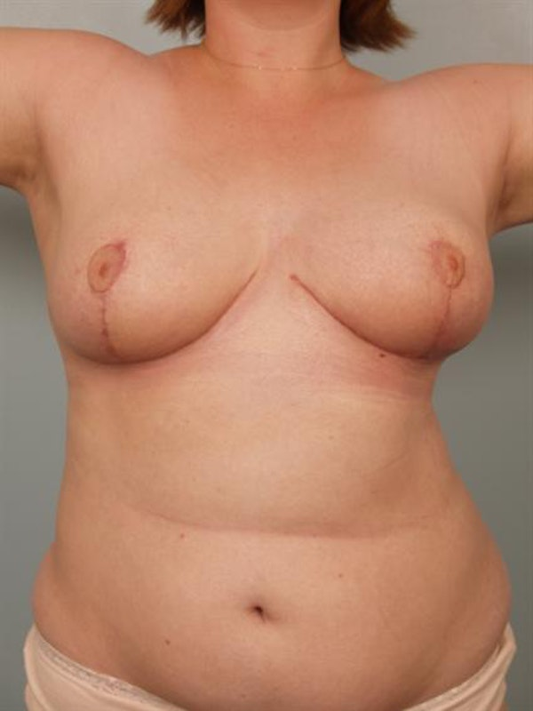 Breast Reduction Gallery - Patient 1310737 - Image 6