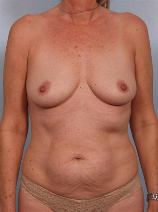 Mommy Makeover Gallery - Patient 1310738 - Image 1