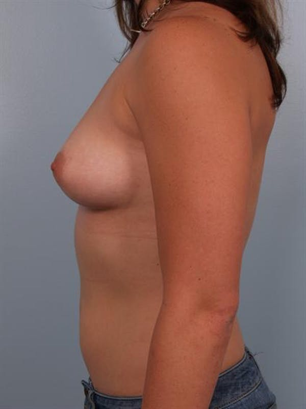 Breast Augmentation Gallery - Patient 1310741 - Image 3