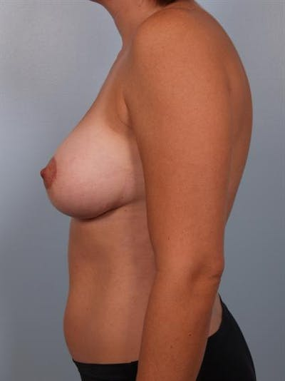 Complex Breast Revision Gallery - Patient 1310739 - Image 4