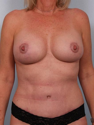 Mommy Makeover Gallery - Patient 1310738 - Image 2