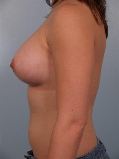 Breast Augmentation Gallery - Patient 1310741 - Image 4