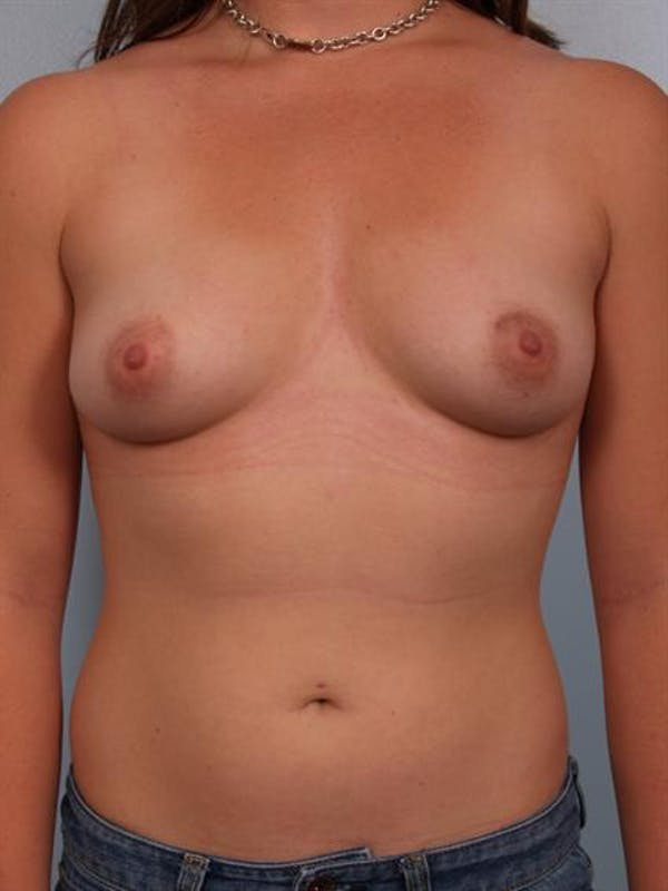 Breast Augmentation Gallery - Patient 1310741 - Image 5