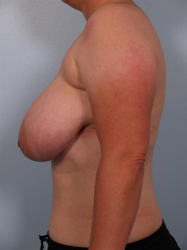 Breast Reduction Gallery - Patient 1310745 - Image 3
