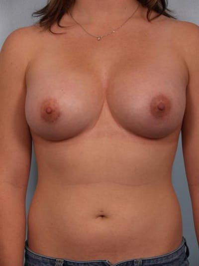 Breast Augmentation Gallery - Patient 1310741 - Image 6