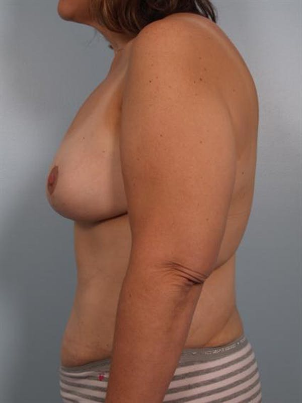 Breast Lift Gallery - Patient 1310742 - Image 6