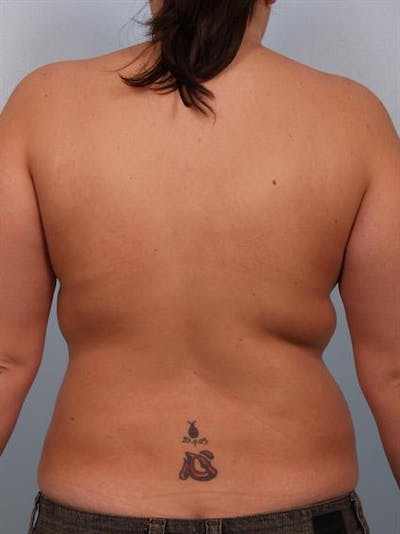 Power Assisted Liposuction Gallery - Patient 1310740 - Image 6