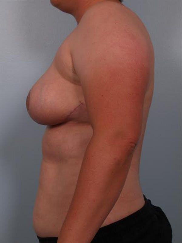 Breast Reduction Gallery - Patient 1310745 - Image 4