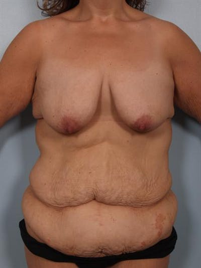 Breast Lift Gallery - Patient 1310742 - Image 1