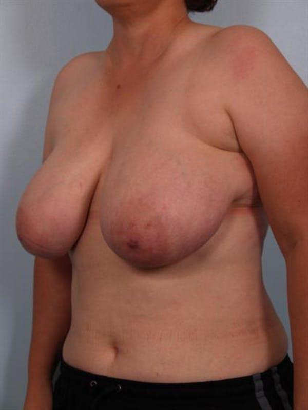 Breast Reduction Gallery - Patient 1310745 - Image 5