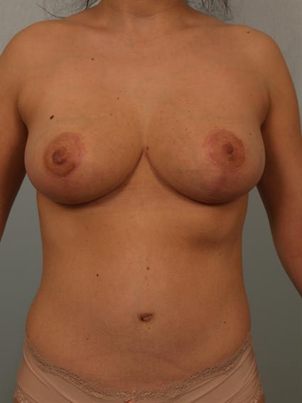 Tummy Tuck Gallery - Patient 1310743 - Image 2