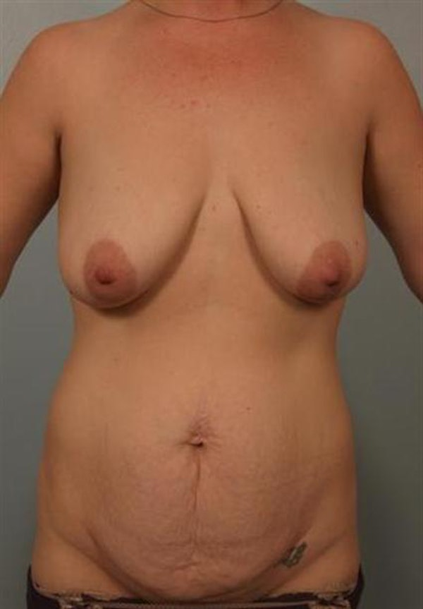 Mommy Makeover Gallery - Patient 1310744 - Image 1