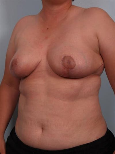Breast Reduction Gallery - Patient 1310745 - Image 6