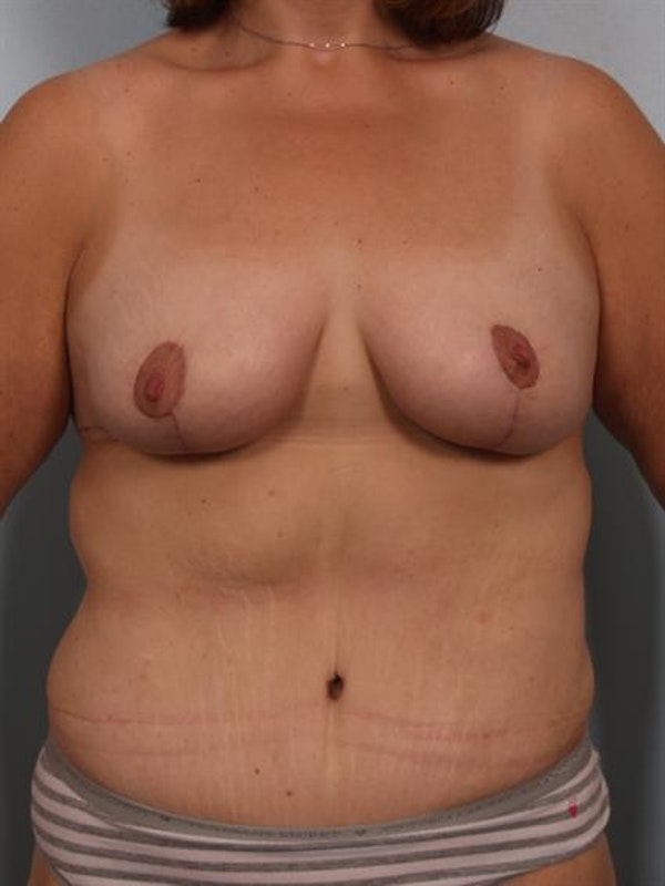 Breast Lift Gallery - Patient 1310742 - Image 2