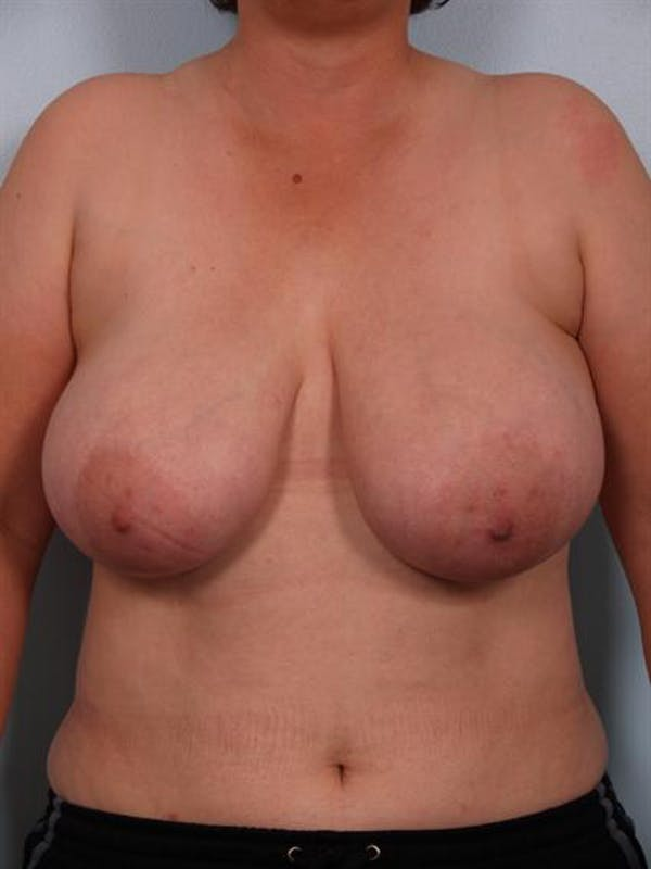 Breast Reduction Gallery - Patient 1310745 - Image 1
