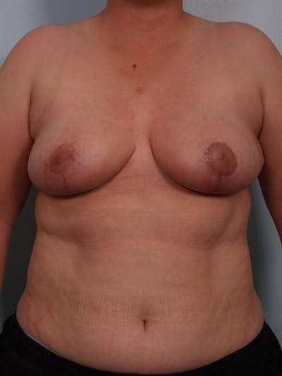 Breast Reduction Gallery - Patient 1310745 - Image 2