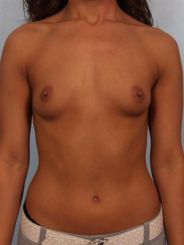 Breast Augmentation Gallery - Patient 1310752 - Image 1